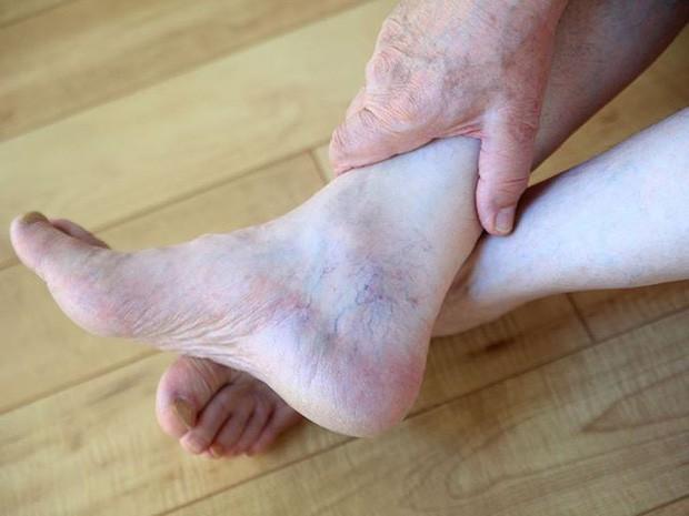 4 triệu chứng dễ thấy ở bàn chân, cảnh báo gan của bạn đang hoạt động kém - Ảnh 4.