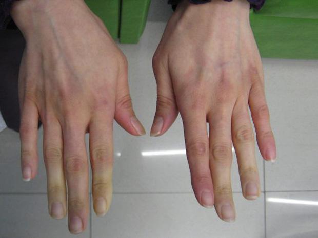 """10 biểu hiện bất thường trên tay đang ngầm """"tố cáo"""" hàng loạt vấn đề sức khỏe mà bạn không ngờ đến - Ảnh 3."""