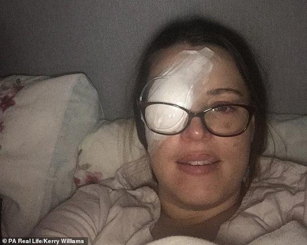 Thấy nhiều đốm trắng nhấp nháy trong phòng ngủ, cô gái người Anh đi khám và không ngờ mình đã bị ung thư mắt - Ảnh 3.