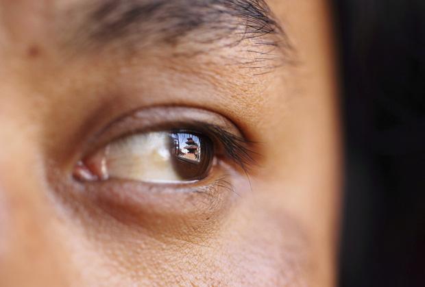 Thấy nhiều đốm trắng nhấp nháy trong phòng ngủ, cô gái người Anh đi khám và không ngờ mình đã bị ung thư mắt - Ảnh 5.