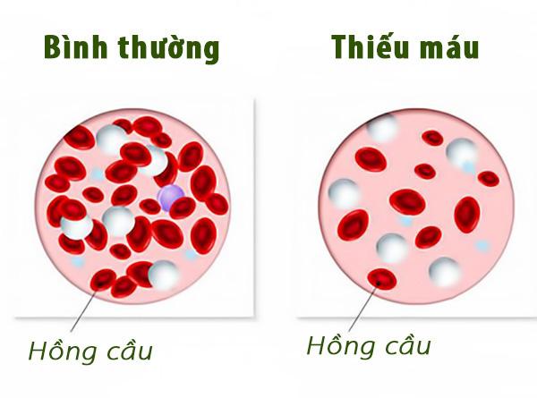 Thiếu máu rất nguy hiểm: TS dinh dưỡng hướng dẫn 5 tuyệt chiêu bổ máu hiệu quả nhất - Ảnh 3.