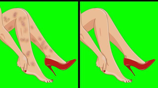 Xuất hiện 6 dấu hiệu này ở chân, bạn nên sớm đi gặp bác sĩ bởi sức khỏe đang gặp vấn đề nghiêm trọng - Ảnh 3.