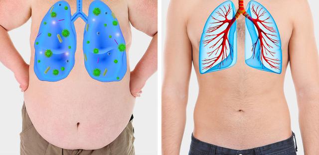 5 dấu hiệu tưởng đơn giản nhưng báo hiệu phổi đang tổn thương nghiêm trọng: Nếu phát hiện sớm có thể cứu mạng nhiều người - Ảnh 4.