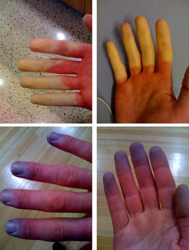 Cẩn thận với căn bệnh thường gặp phải khi trời lạnh khiến ngón tay và ngón chân của bạn đổi màu trắng xanh - Ảnh 3.