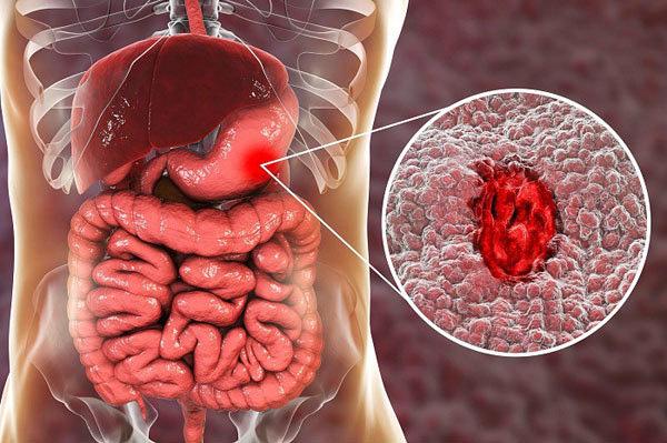 Đây là những cơ quan nội tạng dù có phải cắt bỏ bạn vẫn có thể sống khỏe  - Ảnh 2.