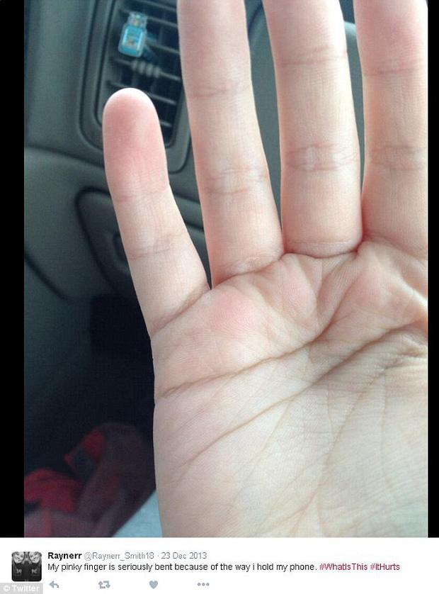 Ngón tay cong vẹo, biến dạng: Tình trạng dễ thấy ở những người dùng điện thoại quá lâu, quá nhiều - Ảnh 5.