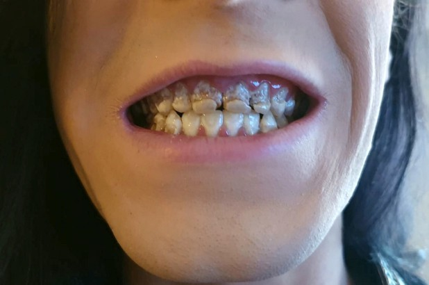 Mục nát hết răng do uống nước tăng lực, chuyên gia cảnh tỉnh về thức uống gây hại sức khỏe - Ảnh 1.