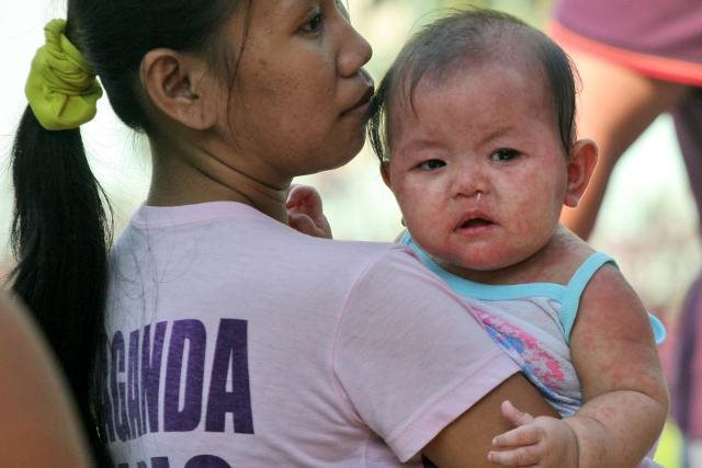 Cha mẹ anti vaccine từ chối tiêm chủng cho con khiến dịch sởi bùng phát và lây lan nhanh trên toàn cầu, tại Philippines hàng chục trẻ em đã thiệt mạng - Ảnh 2.