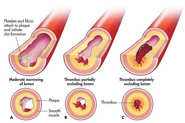 5 triệu chứng ngầm cảnh báo về bệnh huyết khối: Hậu quả nặng nề có thể bạn chưa biết - Ảnh 2.