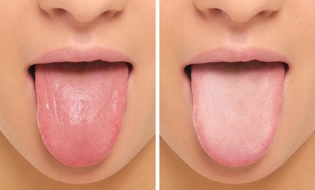 Điểm mặt gọi tên những dấu hiệu báo động cơ thể bạn đang thiếu chất sắt: Qúa quen thuộc đến mức không thể nhận ra! - Ảnh 5.