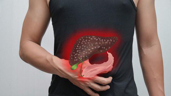 4 dấu hiệu lạ trên mặt cảnh báo bệnh gan, thậm chí là ung thư gan, đi khám ngay kẻo bệnh chuyển nặng khó cứu - Ảnh 1.