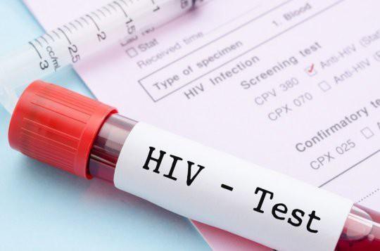 Lần đầu tiên các nhà khoa học loại bỏ được HIV trong toàn bộ gen của chuột: Đem lại hi vọng loại bỏ HIV ở người - Ảnh 2.