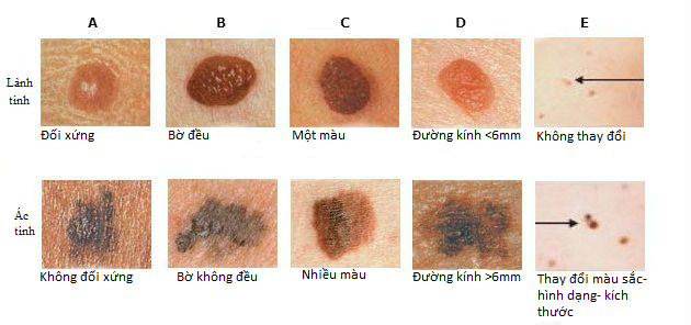 Khi nào nốt ruồi có nguy cơ thành ung thư: Ghi nhớ dấu hiệu ABCDE ngay lập tức - Ảnh 1.