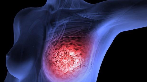 Loại rau chống được 8 bệnh ung thư bao gồm ung thư vú và dạ dày, chợ Việt Nam vừa sẵn lại rẻ bèo - Ảnh 1.