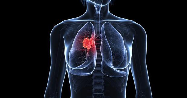 Cô gái 28 tuổi bị ung thư phổi giai đoạn 4, nguyên nhân chính là thứ mà toàn nhân loại đang phải đối diện, tiếp xúc hàng ngày - Ảnh 3.