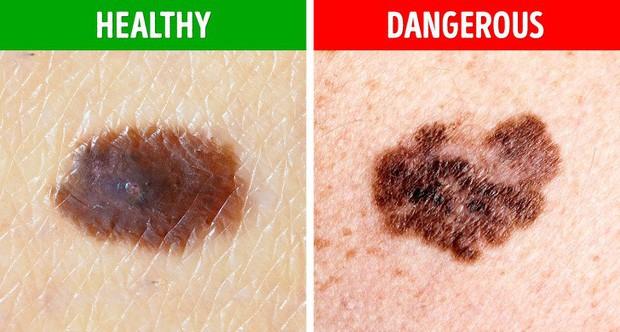 5 biểu hiện lạ của nốt ruồi mà bạn cần hết sức chú ý, có thể có nguy cơ bị ung thư da - Ảnh 2.