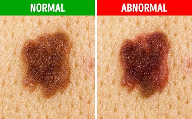 5 biểu hiện lạ của nốt ruồi mà bạn cần hết sức chú ý, có thể có nguy cơ bị ung thư da - Ảnh 3.
