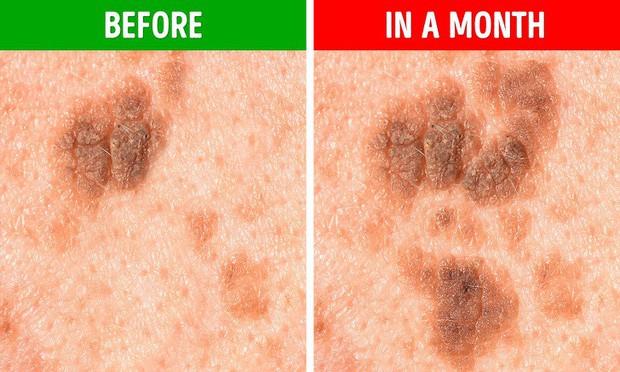 5 biểu hiện lạ của nốt ruồi mà bạn cần hết sức chú ý, có thể có nguy cơ bị ung thư da - Ảnh 5.