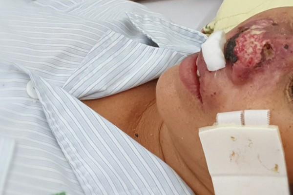 Hàng chục người nhập viện Bạch Mai do nhiễm vi khuẩn ăn thịt người - Ảnh 1.