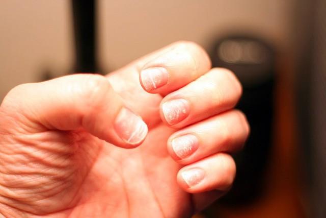 Móng tay vàng là dấu hiệu cảnh báo những vấn đề sức khỏe nghiêm trọng này - Ảnh 3.
