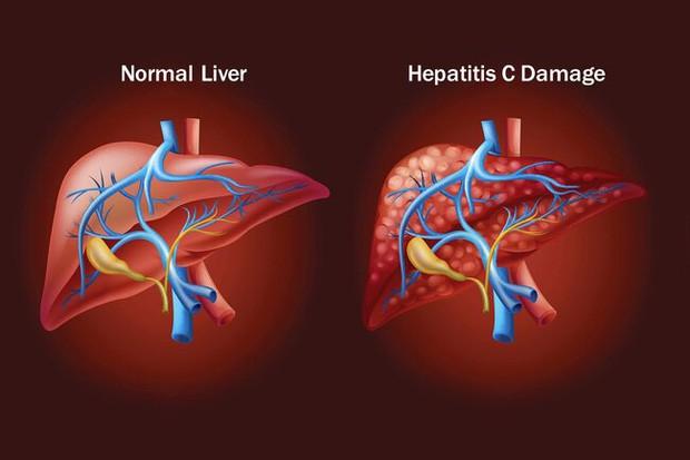 WHO cảnh báo: Việt Nam có gần 1 triệu ca nhiễm virus viêm gan C, cần chủ động phòng ngừa ngay các con đường dễ lây nhiễm - Ảnh 2.