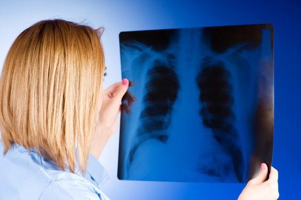 Cả đời không hút thuốc, người đàn ông 42 tuổi vẫn mắc ung thư phổi vì công việc mình đã làm suốt 20 năm - Ảnh 2.