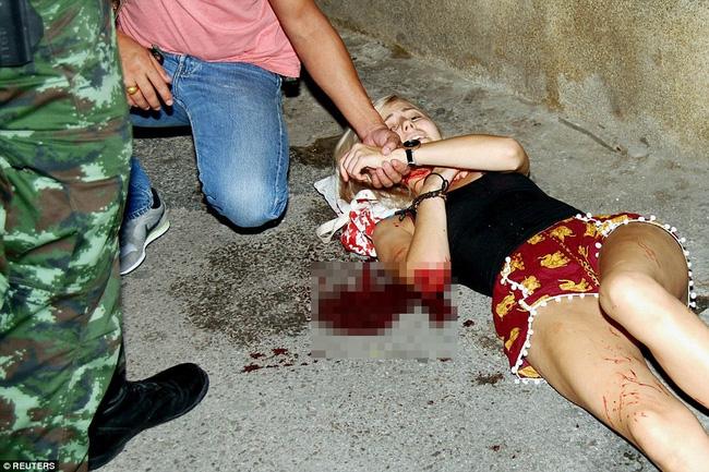 Một nữ du khách sợ hãi với vết thương trong vụ đánh bom.