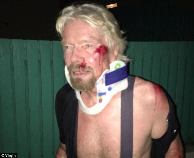 Theo Daily Mail, vụ tai nạn xảy ra khi Branson cùng hai con lớn là Holly và Sam đạp xe trên quần đảo British Virgin. Những hình ảnh tại hiện trường cho thấy vị tỷ phú 66 tuổi gặp phải nhiều chấn thương trên mặt và cơ thể. Ảnh: Virgin