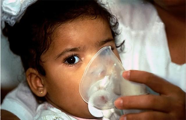 Trẻ em ở Cubatao (Brazil) phải dùng ống thở vì ô nhiễm không khí. | ẢNH: GETTY IMAGES