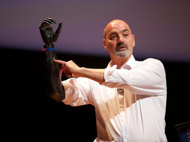 """Ackland tự ví cánh tay của mình giống với nhân vật robot trong phim """"Kẻ hủy diệt""""."""