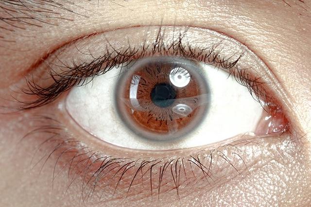 Vòng tròn trắng xung quanh tròng mắt có thể là dấu hiệu cơ thể quá thừa cholesterol, triglycerides.