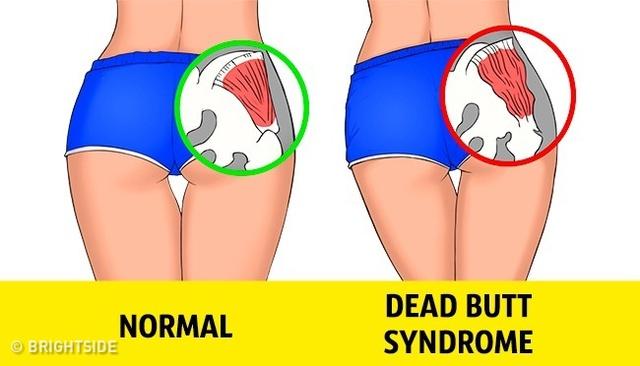 Các cơ mông bị giãn ra lâu ngày dẫn đến hiện tượng mông chết.