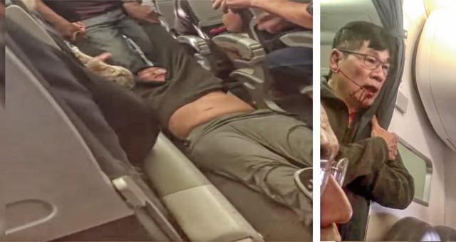 Bác sĩ gốc Việt bị đối xử như tội phạm trên chuyến bay của United Airlines.
