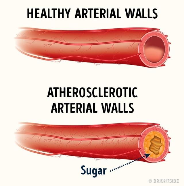 Lượng đường trong máu cao khiến các cholesterol có thể bám chặt vào thành mạch máu.