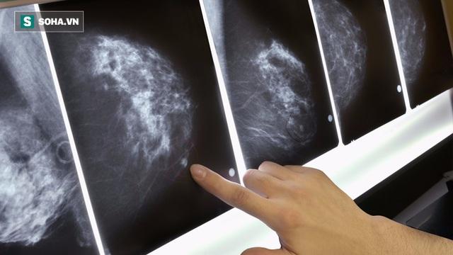 Khi quan sát bản đồ quang tuyến vú, mô mỡ ở vú có màu tối còn mô bào đặc có màu trắng
