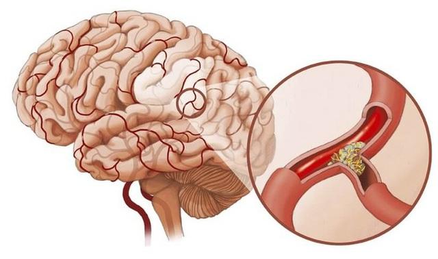 Tắc mạch máu dẫn đến nhiều bệnh nguy hiểm, phổ biến là đột quỵ, tử vong (Ảnh minh họa)
