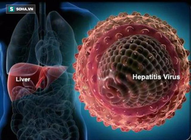 Viêm gan virut là một trong những sát thủ thầm lặng phá hủy gan