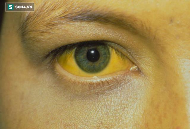 Vàng da, vàng mắt là dấu hiệu của bệnh viêm gan nhiễm độc.