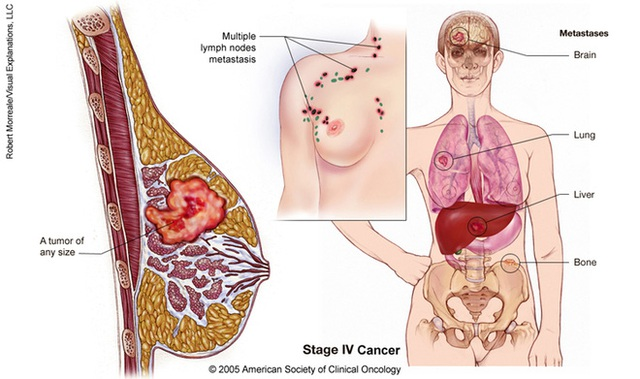 Nguồn: American society of clinical Oncology