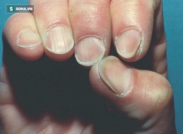 Móng tay màu trắng bạc, có thể bạn đang bị thiếu máu mãn tính, hoặc có vấn đề về gan, thận