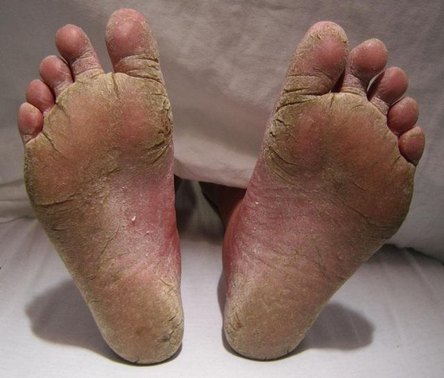 Một bàn chân nhiễm nấm đến nứt nẻ