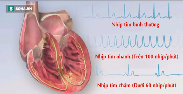 Các chuyên gia sức khỏe khẳng định người có nhịp tim chậm sẽ sống thọ. (Ảnh minh họa).