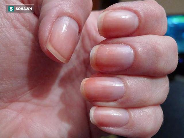 Tất cả thay đổi màu sắc của móng tay cần khám vì có thể là có mối liên quan với bệnh ung thư.