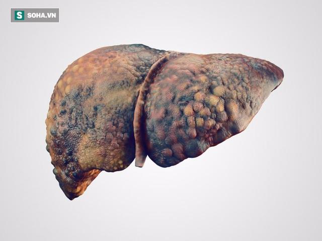 Xơ gan là tổn thương kéo dài có thể dẫn tới suy gan