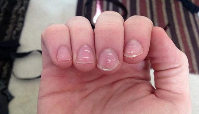Các đốm trắng xuất hiện trên móng tay thường được cho là do thiếu canxi, nhưng thực tế có thể do thiếu kẽm.