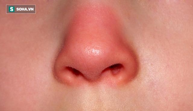 Khi mũi đột nhiên trở nên đỏ bất thường, hãy cảnh giác trước những bệnh lý về gan. (Ảnh minh họa).