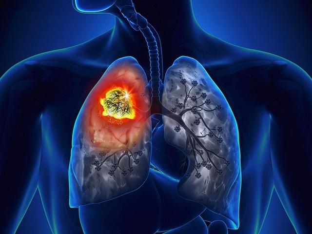 Lá phổi đã bị suy yếu do các bệnh lý liên quan tới đường hô hấp càng có nguy cơ mắc ung thư cao. (Ảnh minh họa).