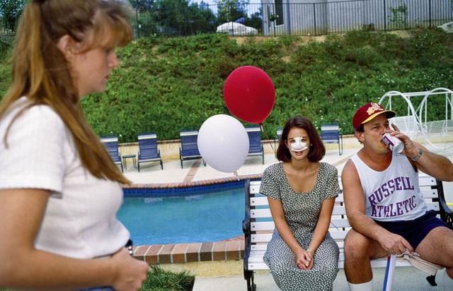 Lindsey, 18 tuổi, ở một bữa tiệc vào ngày 4 tháng 6 năm 1993 ở Calabasas, Calif, ba ngày sau khi phẫu thuật mũi. Năm người bạn thân của cô ở trường trung học Calabasas cũng đã trải qua phẫu thuật thẩm mỹ.