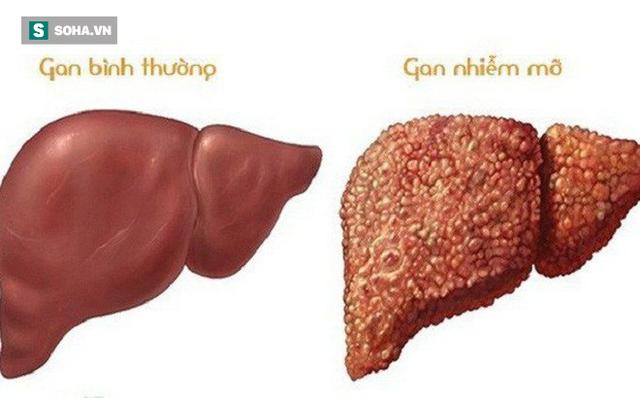 Gan nhiễm mỡ là bước đệm dẫn đến xơ gan và ung thư: 6 nguy cơ ai cũng cần biết để phòng - Ảnh 1.