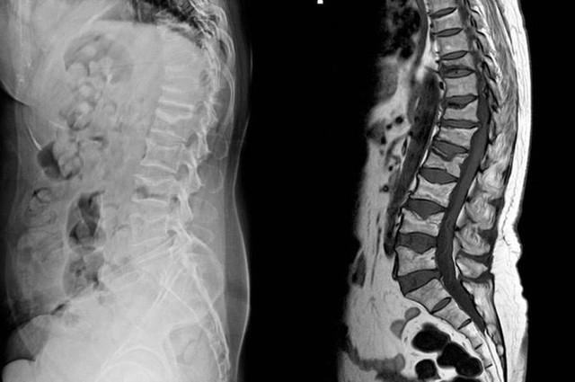 7 bệnh nghiêm trọng sau dấu hiệu của cơn đau lưng - Ảnh 2.